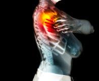 Mänskligt skelett under röntgenstrålarna som isoleras på svart bakgrund Fotografering för Bildbyråer