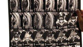 10. März 2109 Kiew, Ukraine Des Doktors sehen Problemkreise der Rückseite auf dem MRI-Scan oder -röntgenstrahl stock video footage