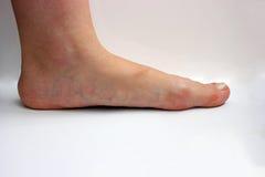 Médecine, pieds plats, tarsoptosia, femelle de pied d'isolement Images libres de droits
