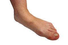 Médecine, pieds plats, tarsoptosia, jambes de femme Photo stock