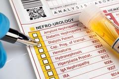 Médico que enche o formulário médico do diagnóstico do urianalysis Imagens de Stock
