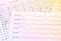 Méthode électrophysiologique de surveillance d'EEG Vague d'EEG en Br humain Image stock
