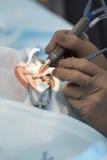 Método cirúrgico substituível da lente cristalina fotos de stock