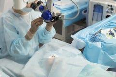 Método cirúrgico substituível da lente cristalina foto de stock