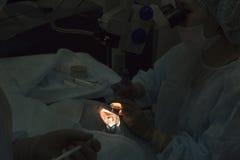 Método cirúrgico substituível da lente cristalina fotografia de stock royalty free