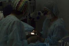 Método cirúrgico substituível da lente cristalina imagem de stock