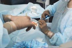 Método cirúrgico substituível da lente cristalina imagens de stock royalty free