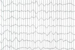 Método electrofisiológico de la supervisión de EEG Onda de EEG en Br humano fotos de archivo