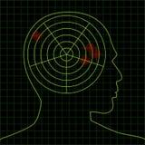 móżdżkowy radar ilustracja wektor