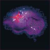 Mózg, komputeru i mózg krwawienie, Zdjęcie Royalty Free