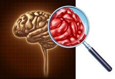 Mózg Up Zamknięty Obrazy Royalty Free