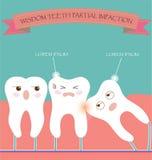 Mądrość zębów erupci Częściowy wciśnięcie ilustracja wektor