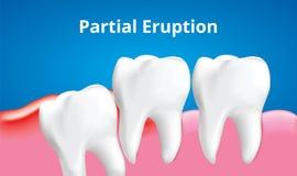 Mądrość zębu Partital erupcja z rozognienie afektem, Stomatologicznej opieki pojęcie, Realistyczny wektor royalty ilustracja