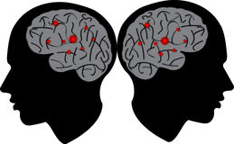 Mężczyzna głowa z mózg Zdjęcie Royalty Free