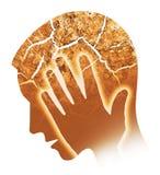 Mężczyzna migrena, migrena, oparzenie out ilustracja wektor