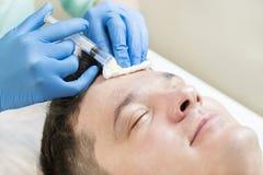 Mężczyzna przechodzi kurs mesotherapy zdjęcia royalty free