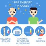 Mężczyzna przed i po RPR terapią ilustracji