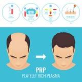 Mężczyzna przed i po RPR terapią ilustracja wektor