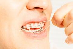 Mężczyzna stawiający lateksowi pierścionki na zębach dla korygować kąsek Obrazy Royalty Free