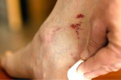 Mężczyzna taktuje ranę na jego nodze z bawełnianym mopem z medycyną obrazy stock
