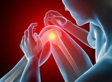 Mężczyzna z bólem, rzepką, koścem i mięśniami kolana, prześwietlenie Zdjęcie Stock