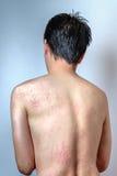 Mężczyzna z dermatitis problemem wysypka obraz royalty free