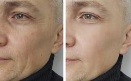 Mężczyzna zmarszczenia before and after zdjęcia royalty free