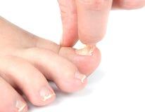 Męska stopa i palec u nogi z uszkadzającym gwozdziem Obraz Stock