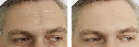 Męski czoło marszczy oczy, nadyma się skutek przed i po usunięcie kosmetologii procedurami obraz royalty free
