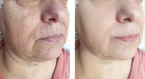 Męski czoło marszczy przed i po różnicy biorevitalization kosmetologii traktowaniem zdjęcie royalty free