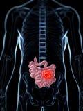 Męski mały jelito - nowotwór Zdjęcie Stock