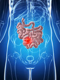 Męski mały jelito - nowotwór ilustracji