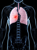 Męski płuco - nowotwór Zdjęcia Royalty Free