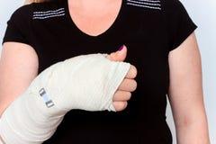 Młoda kobieta z łamaną ręką w obsadzie Obraz Stock