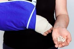 Młoda kobieta z łamaną ręką w obsadzie Obraz Royalty Free