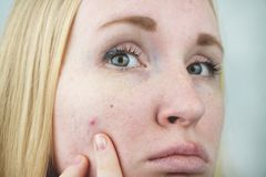 Młoda kobieta z trądzikiem Stosować maść krosta Piękno, skóry opieki stylu życia pojęcie zdjęcia royalty free