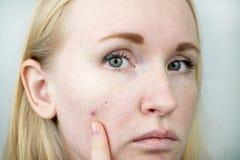 Młoda kobieta z trądzikiem Stosować maść krosta Piękno, skóry opieki stylu życia pojęcie obrazy royalty free