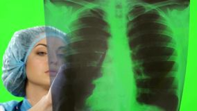 Młoda kobiety lekarka patrzeje promieniowanie rentgenowskie obrazek zbiory