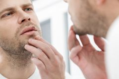 Młodego człowieka cierpienie od herpes na jego usta Fotografia Royalty Free