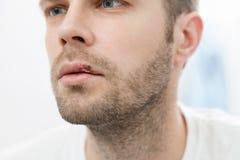Młodego człowieka cierpienie od herpes na jego usta Fotografia Stock
