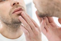 Młodego człowieka cierpienie od herpes na jego usta Obrazy Royalty Free
