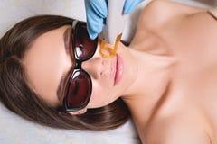 Młodej Kobiety Odbiorczej epilaci Laserowy traktowanie Na twarzy Przy piękna centrum zakończeniem Up Obrazy Stock