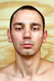 Młody człowiek z chronicznymi infekującymi candida albicans Zdjęcia Stock