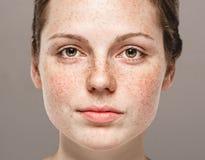 Młody piękny pieg kobiety twarzy portret z zdrową skórą zdjęcia stock
