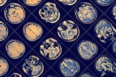 M. beeld van menselijke hersenen stock foto's