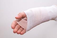 Mała dziewczynka girl& x27 z łamaną ręką, troszkę; s ręka bandażująca Fotografia Royalty Free