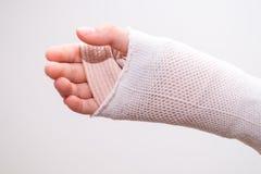 Mała dziewczynka girl& x27 z łamaną ręką, troszkę; s ręka bandażująca Zdjęcia Stock