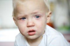 Mały, płaczący berbecia w bólu zdjęcie stock