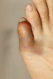 Mały palec u nogi z surowym rozognieniem i siniaczyć obrazy stock