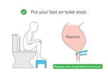 Maakt het rectum recht terwijl het zitten op toilet met kleine banken royalty-vrije illustratie